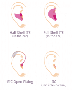 More types of hearing aid